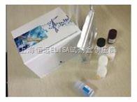 人丙二醛ELISA试剂盒