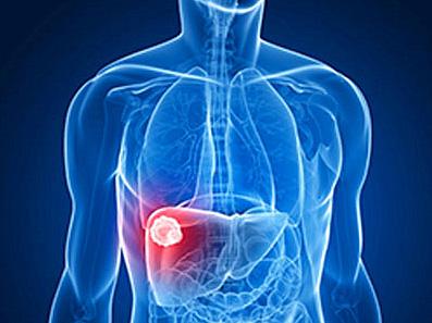 诊断肝癌的方法-HBV血清
