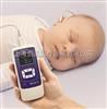 EroScan耳声发射分析仪/听力筛查/声阻抗